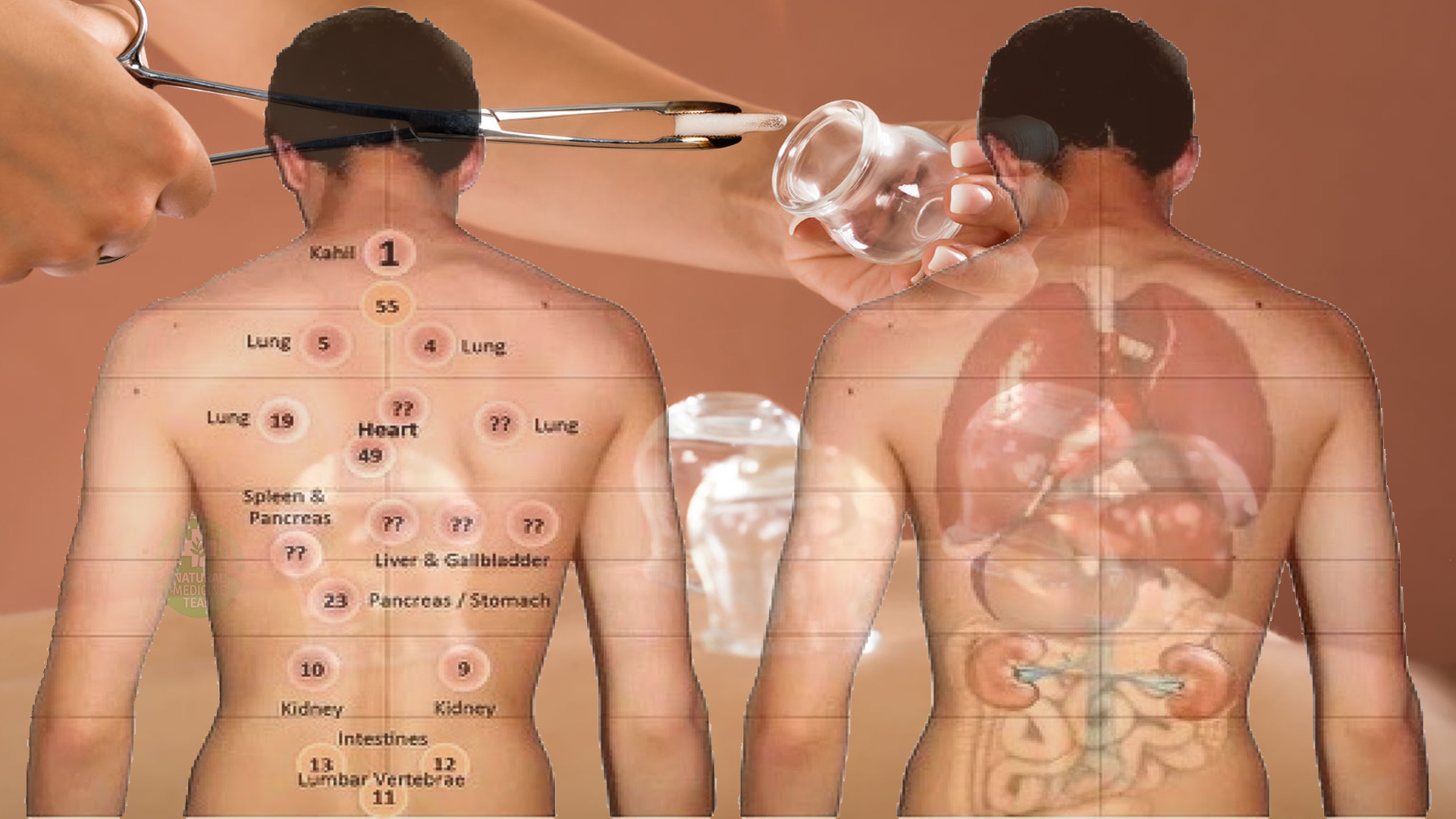 5 Remarkable Healing Benefits Of Cupping Therapy For Your Back, Skin, And Nerves