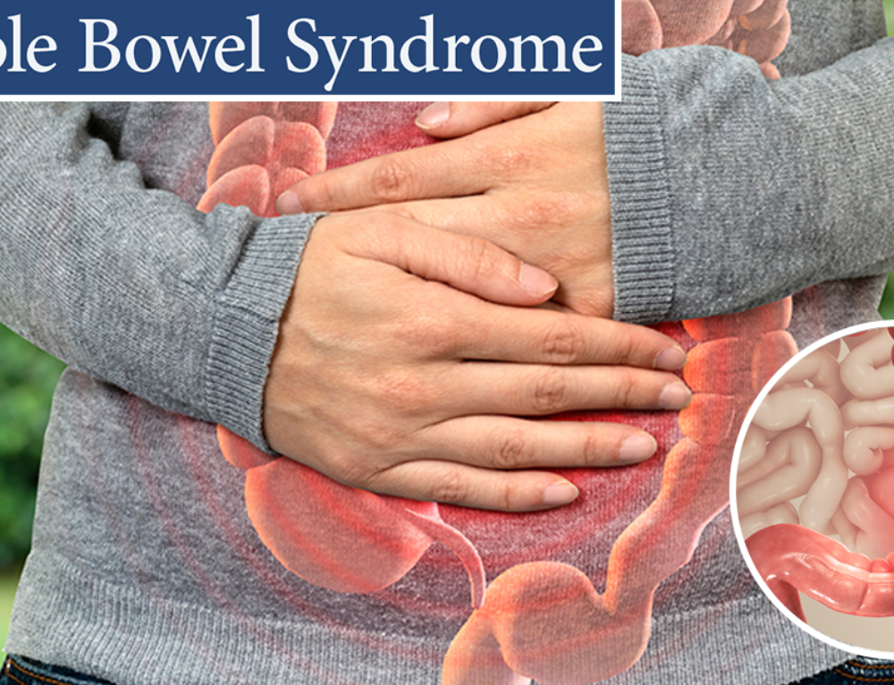 Irritable bowel syndrome – How to Recognize This Syndrome?